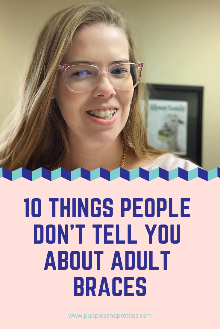 10 things people don't tell you about adult braces | A fun look at braces because if you don't laugh, you might cry | Puppies & Pretties